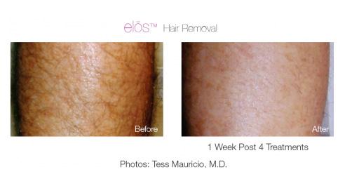 elos-hair-removal