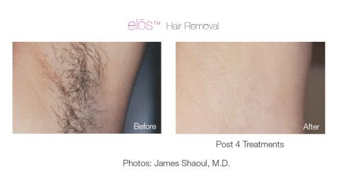 elos-hair-removal-2