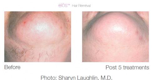 elos-hair-removal-3