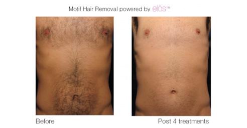 elos-hair-removal-4