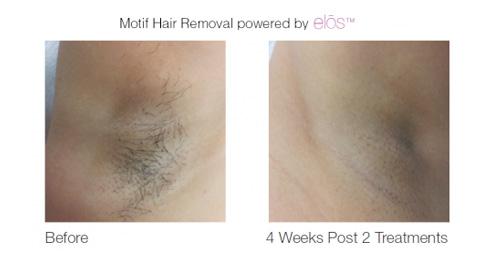 elos-hair-removal-5